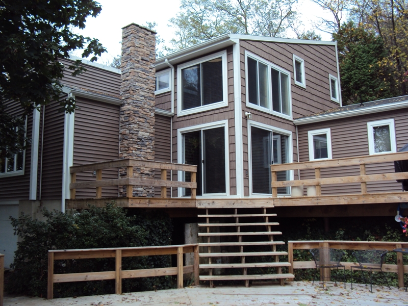 Photo Gallery Face Lifts And Remodeling